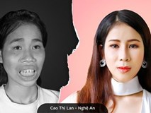 Cuộc sống mới của cô gái bị mẹ câm điếc xua đuổi sau phẫu thuật thẩm mỹ: 'Mình chưa nghĩ đến việc sẽ yêu ai đó'