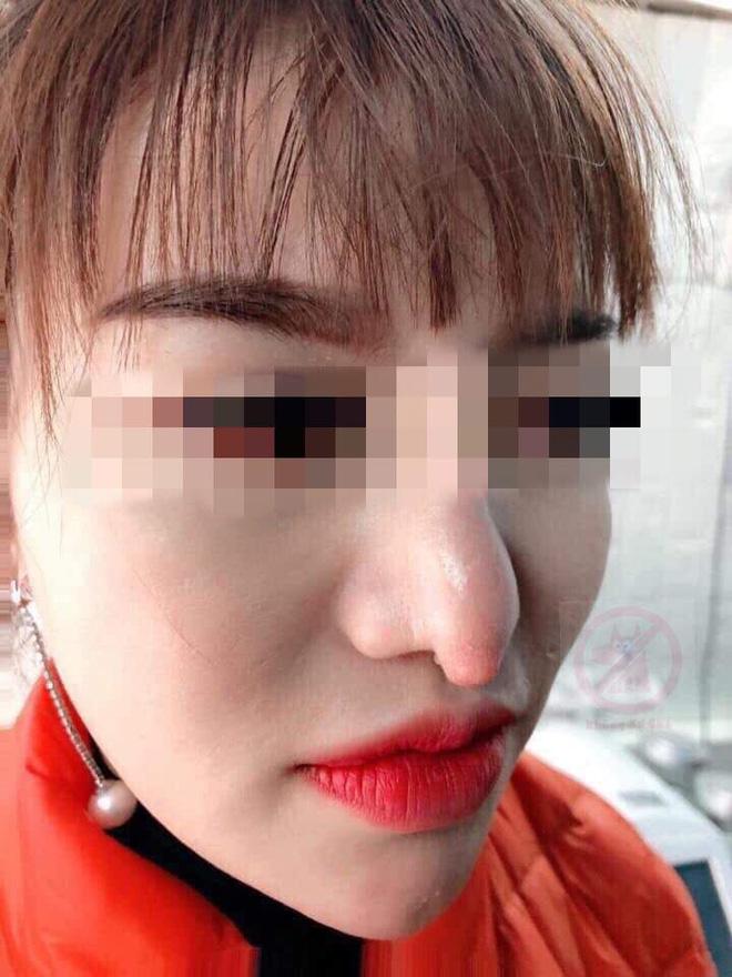 Chọn nhầm thẩm mĩ viện, cô gái xót xa vì chiếc mũi khoằm tệ hơn bản gốc-2