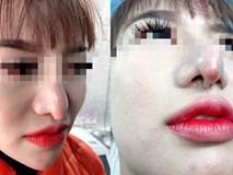 Chọn nhầm thẩm mĩ viện, cô gái xót xa vì chiếc mũi khoằm tệ hơn bản gốc