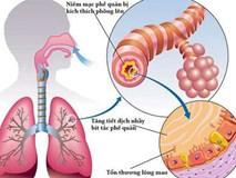 Từ triệu chứng đau thắt ngực, khó thở, cô sinh viên đã rất sốc khi biết phổi của mình trông như thế này