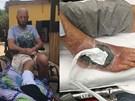 Rùng mình, bác sĩ thả 400 con giòi vào chân để ăn thịt chữa bệnh