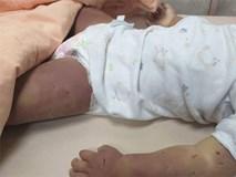 Bé gái bất ngờ ọc sữa rồi tử vong, kiểm tra thi thể em thì phát hiện nghi phạm không ai khác chính là người mẹ 17 tuổi