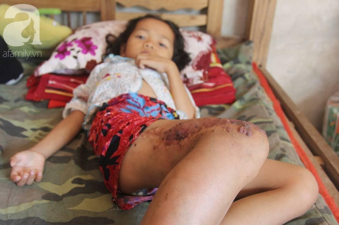 Em quỳ gối xin mọi người cứu lấy con em, không có tiền phẫu thuật bướu máu con bé sẽ chết-11