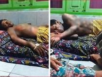 Indonesia: Vợ tẩm xăng thiêu chồng vì không chịu đưa mật khẩu điện thoại
