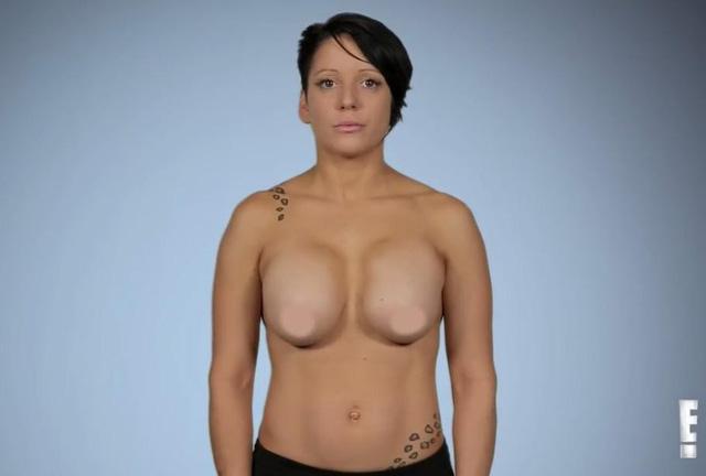 Ngực co lại, cứng ngắc như đá sau phẫu thuật thẩm mỹ khiến cô gái khóc ròng-3