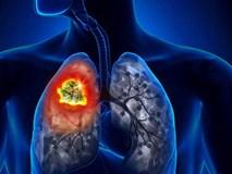 Người đàn ông được phát hiện ung thư phổi sau 10 ngày ho khan, cảnh báo dấu hiệu sớm của bệnh phải cẩn trọng