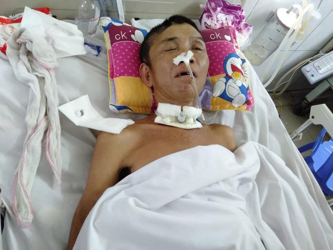Nghệ An: Con trai 2 tuổi sợ hãi khóc thét sau 2 tháng gặp lại bố bị tai nạn giao thông-3