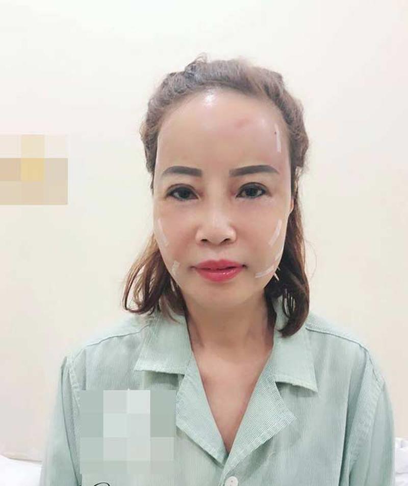"""Hơn chồng 36 tuổi, cô dâu Cao Bằng đại tu"""" những bộ phận này để không bị nhầm là mẹ - con-3"""