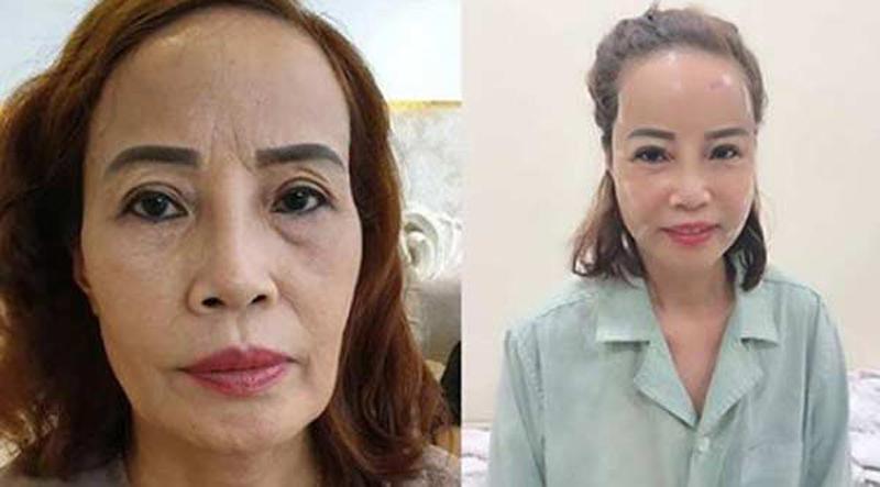 """Hơn chồng 36 tuổi, cô dâu Cao Bằng đại tu"""" những bộ phận này để không bị nhầm là mẹ - con-4"""