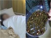 2000 viên sỏi mật trong cơ thể người phụ nữ vì thói quen buổi sáng người Việt mắc không ít
