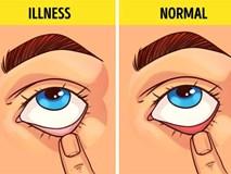 Bài kiểm tra sức khỏe đơn giản bạn có thể tự làm tại nhà để biết mình có bị 9 bệnh này hay không