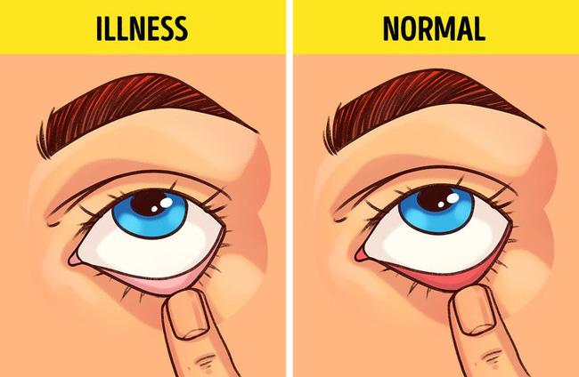 Bài kiểm tra sức khỏe đơn giản bạn có thể tự làm tại nhà để biết mình có bị 9 bệnh này hay không-3