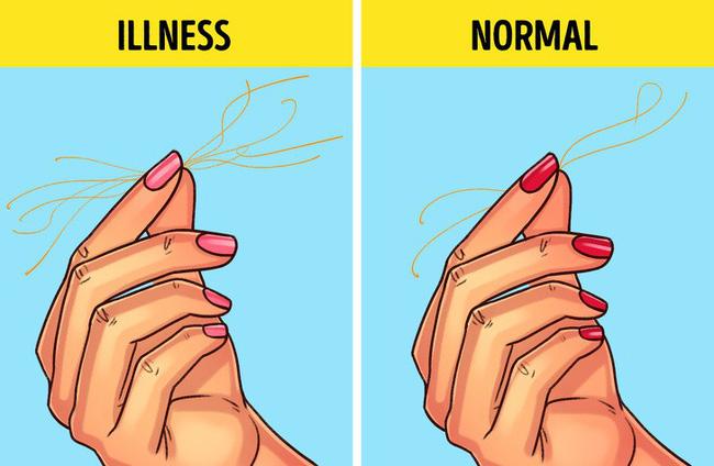Bài kiểm tra sức khỏe đơn giản bạn có thể tự làm tại nhà để biết mình có bị 9 bệnh này hay không-4
