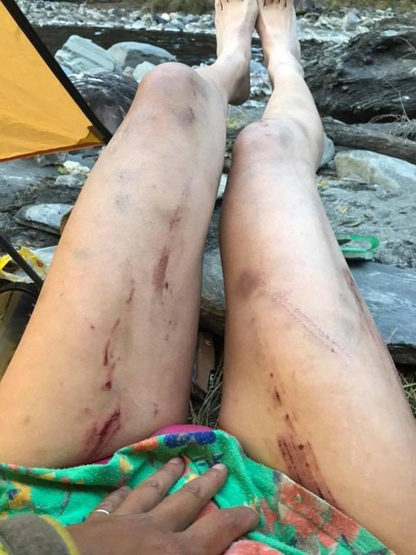 Mặc bikini đi leo núi giữa trời lạnh, ngôi sao MXH nhận cái kết thảm khốc-3