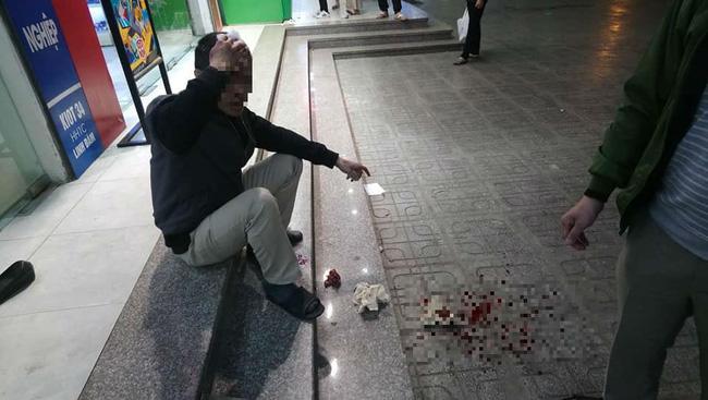 Ngồi uống nước ở sân chung cư HH Linh Đàm, người đàn ông bị gạch đá rơi chảy máu đầu-1