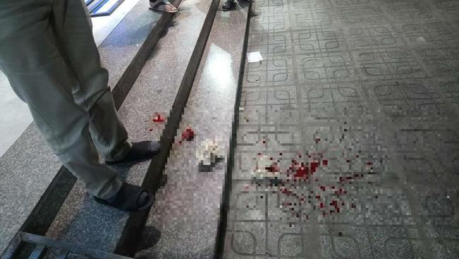 Ngồi uống nước ở sân chung cư HH Linh Đàm, người đàn ông bị gạch đá rơi chảy máu đầu-4