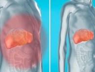 Cách này giúp loại bỏ chất độc ra khỏi gan, thận và bàng quang một cách tự nhiên để yên tâm đón Tết
