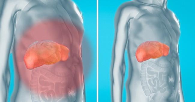 Cách này giúp loại bỏ chất độc ra khỏi gan, thận và bàng quang một cách tự nhiên để yên tâm đón Tết-1