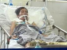 Căn bệnh diễn tiến cực nhanh, cực nguy hiểm: Chuyên gia Bạch Mai cảnh báo dấu hiệu cần nhớ