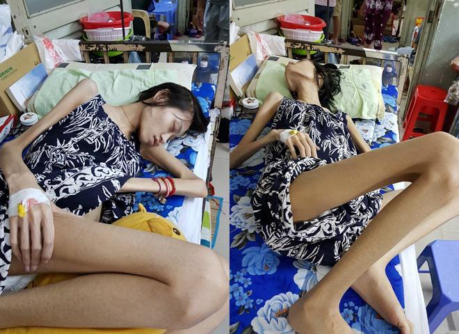 Người mẫu Kim Anh qua đời vì ung thư buồng trứng, hình ảnh cuối đời khiến ai cũng bật khóc-1