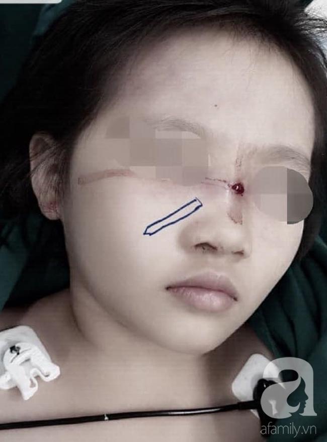 Tai nạn kinh hoàng cận Tết: Cầm bút chì chơi rồi vấp ngã, bé gái 6 tuổi bị đâm xuyên từ mũi đến hốc mắt-1