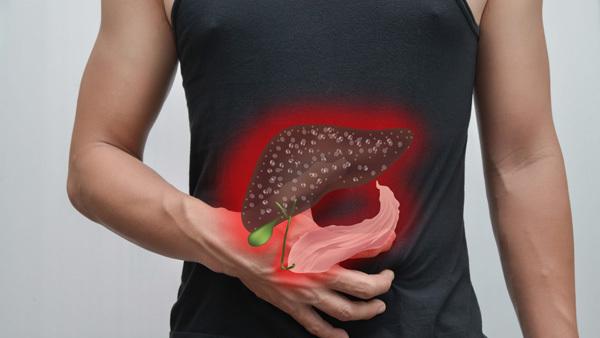 7 dấu hiệu ung thư gan mật bác sĩ cảnh báo-1