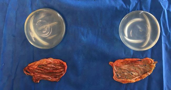 Hàng trăm trường hợp mắc ung thư sau phẫu thuật nâng ngực được phát hiện tại Mỹ-1