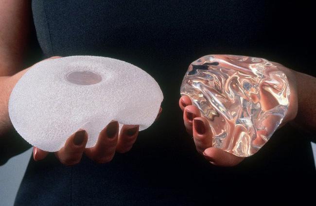 Hàng trăm trường hợp mắc ung thư sau phẫu thuật nâng ngực được phát hiện tại Mỹ-2
