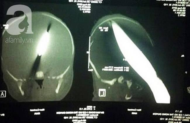 Bé trai Vĩnh Long bị đâm xuyên não lúc mới sinh đón giao thừa cùng mẹ trong viện, ngổn ngang nỗi lo sau Tết-2