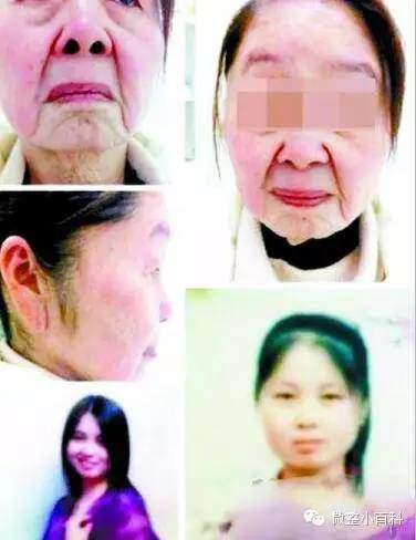 Sau khi sinh con, cô gái trẻ đẹp bỗng biến thành bà lão 60 tuổi chỉ qua một đêm-2