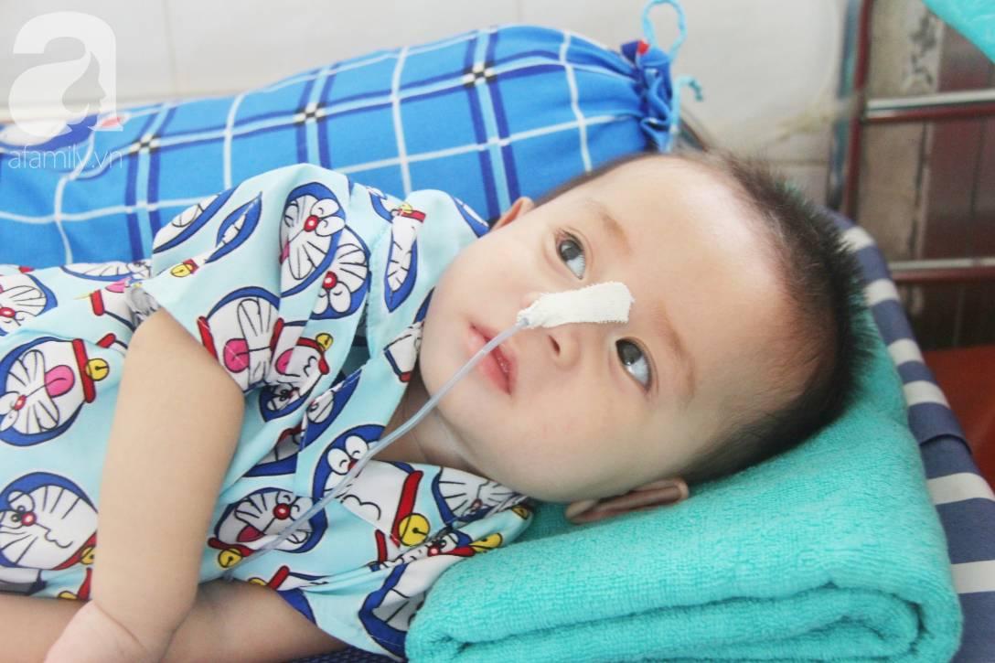 Ánh mắt cầu cứu của bé trai 7 tháng tuổi bị mẹ bỏ rơi trước cổng chùa vì mắc bệnh bại não-2