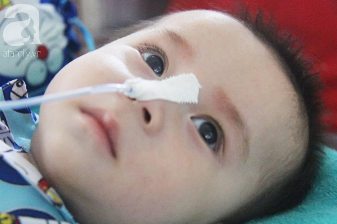 Ánh mắt cầu cứu của bé trai 7 tháng tuổi bị mẹ bỏ rơi trước cổng chùa vì mắc bệnh bại não-3