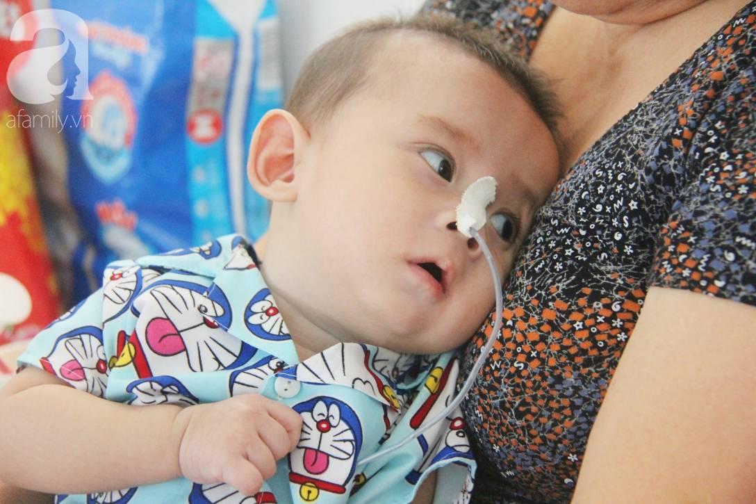 Ánh mắt cầu cứu của bé trai 7 tháng tuổi bị mẹ bỏ rơi trước cổng chùa vì mắc bệnh bại não-5