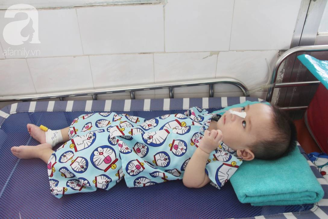 Ánh mắt cầu cứu của bé trai 7 tháng tuổi bị mẹ bỏ rơi trước cổng chùa vì mắc bệnh bại não-6