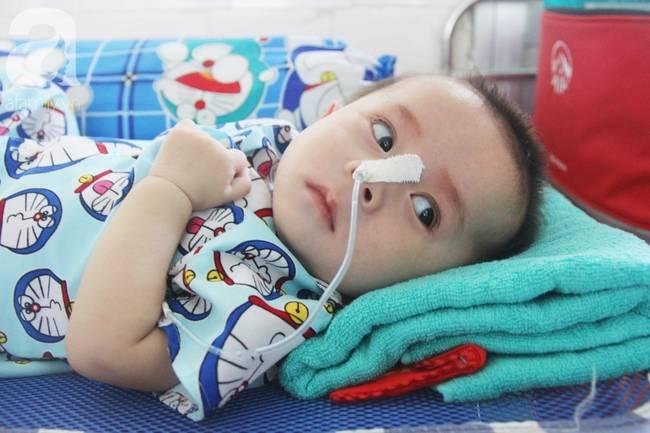 Ánh mắt cầu cứu của bé trai 7 tháng tuổi bị mẹ bỏ rơi trước cổng chùa vì mắc bệnh bại não-10