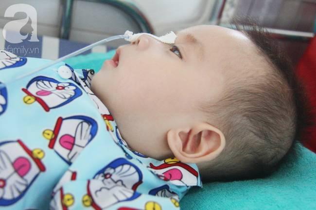 Ánh mắt cầu cứu của bé trai 7 tháng tuổi bị mẹ bỏ rơi trước cổng chùa vì mắc bệnh bại não-14
