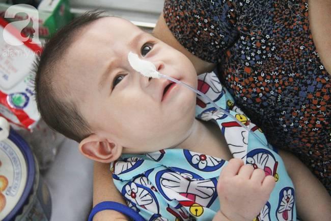 Ánh mắt cầu cứu của bé trai 7 tháng tuổi bị mẹ bỏ rơi trước cổng chùa vì mắc bệnh bại não-17