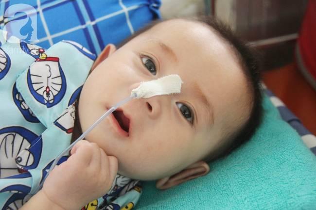 Ánh mắt cầu cứu của bé trai 7 tháng tuổi bị mẹ bỏ rơi trước cổng chùa vì mắc bệnh bại não-18