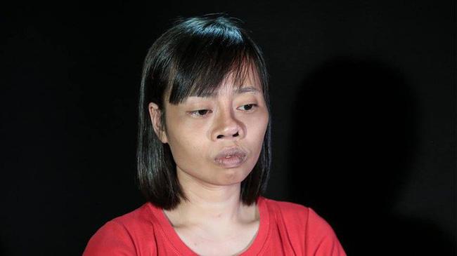 Tai nạn trên đường đi lấy bằng tốt nghiệp khiến khuôn mặt biến dạng, cô gái quyết tâm lột xác và thành quả đầy bất ngờ-2