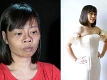 Tai nạn trên đường đi lấy bằng tốt nghiệp khiến khuôn mặt biến dạng, cô gái quyết tâm