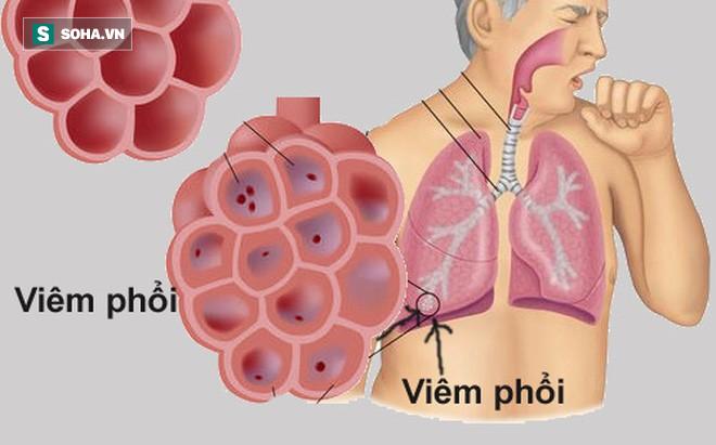 4 loại thực phẩm vàng tốt nhất cho phổi: Người có bệnh thì nên ăn nhiều để giảm viêm-1