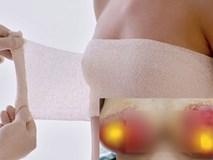 Cộng đồng chị em xôn xao với ca treo ngực thất bại tại spa với giá 15 triệu: Ngực hoại tử, lở loét kinh hoàng