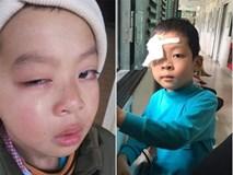 Lạng Sơn: Bé trai có nguy cơ mù vì bị cô giáo chủ nhiệm dùng thước đánh vào mắt