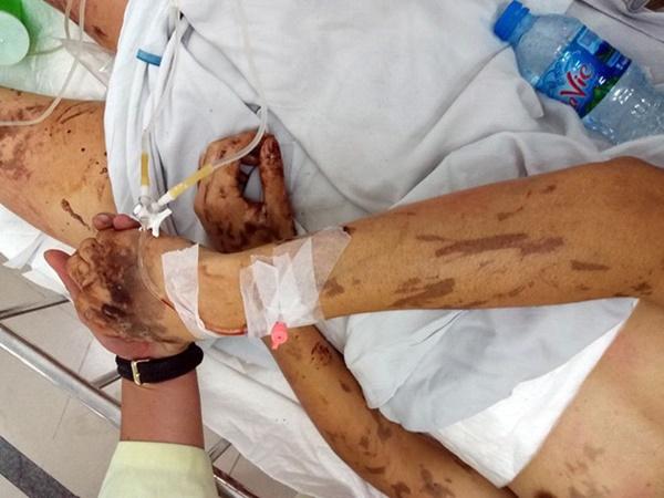 Nhiều tình tiết mới trong vụ tạt axit, cắt gân chân Việt kiều Canada-1