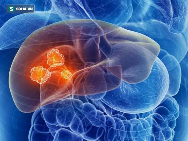 Cẩn thận với các khối u phát triển âm thầm trong gan: Đây là 4 tín hiệu sớm nhất cần biết-1