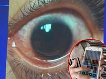 Cô gái bị giảm thị lực còn 3/10 và đứng trước nguy cơ bị thủng giác mạc, hậu quả của thói quen dùng điện thoại phổ biến