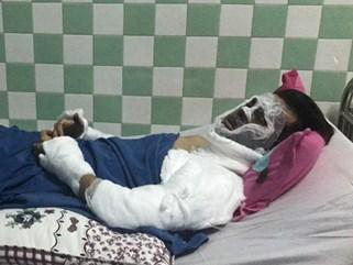 Việt kiều bị tạt axit khi đi chơi Tết với bạn gái vẫn còn mê man, mắt tổn thương nặng, thị lực chỉ còn 15 - 20%