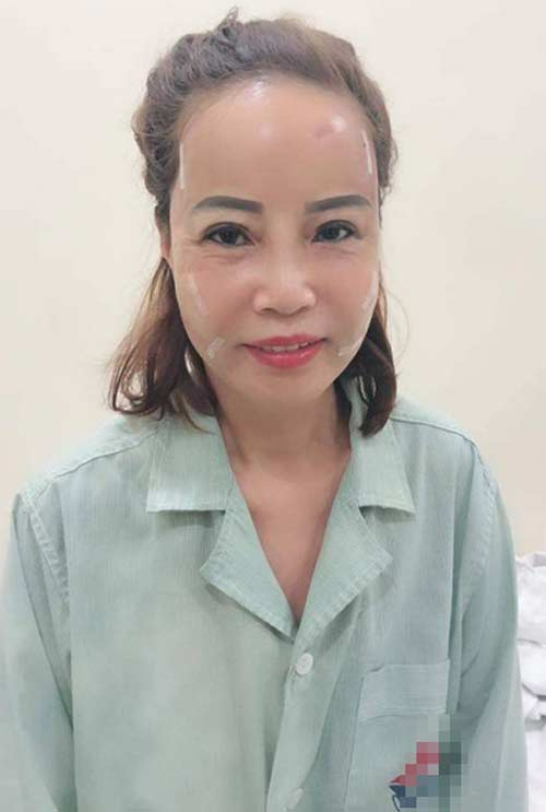 Cô dâu Cao Bằng 62 tuổi lấy chú rể 26 tuổi sức khỏe yếu hậu thẩm mỹ-3