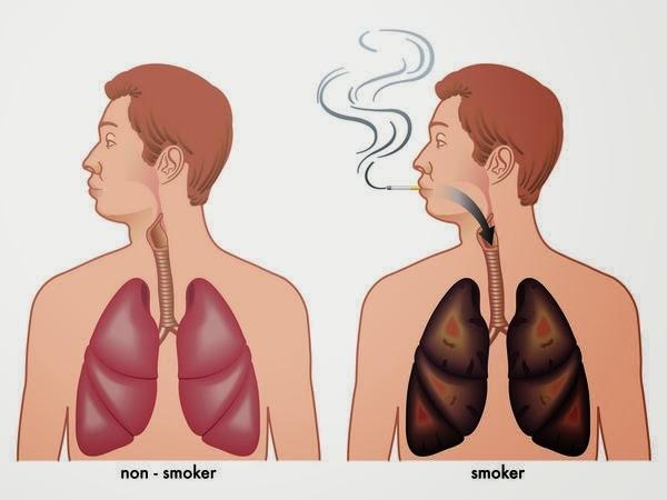 Một số phương pháp tự nhiên mà ai cũng có thể thực hiện để làm sạch phổi của mình-1
