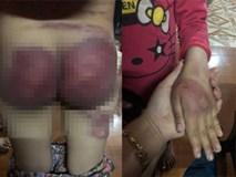 Người cha nghiện ngập bỏ trốn sau khi đánh con gái 8 tuổi bầm tím khắp cơ thể